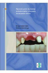 bw-reconstrucciatildesup3n-de-dientes-endodonciados-ediciones-especializadas-europeas-9788494030543